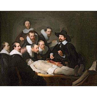 - Cuadro -Lección de anatomia del prof. Nicolaes Tulp-- - Rembrandt, Hermensz Van Rijn